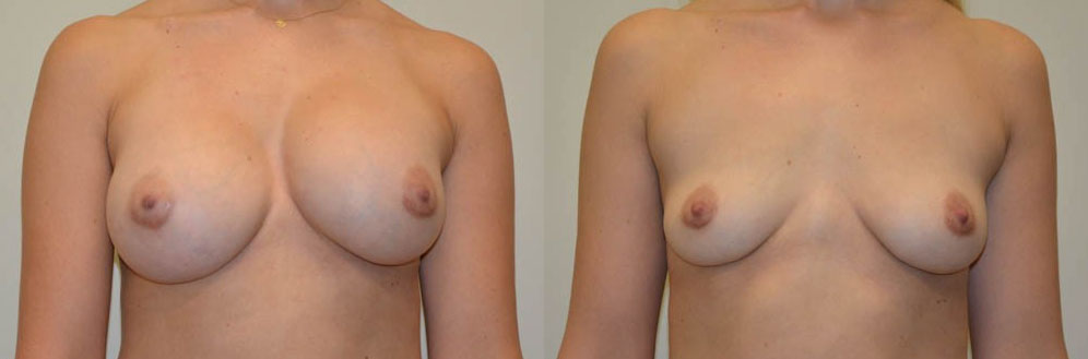 Breast Implant Removal Before & After Photos