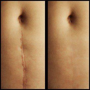 scar revision treatment