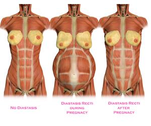 Rectus Diastasis Repair Allen Doezie Md Facs