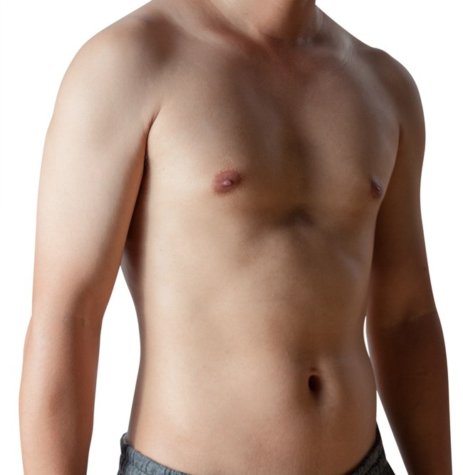 Gynecomastia and Male Breast Reduction