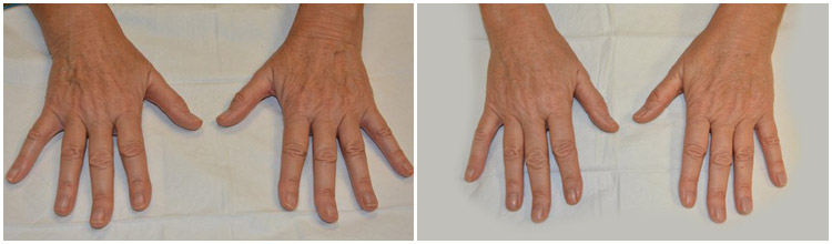 hand-rejuvenation-banda