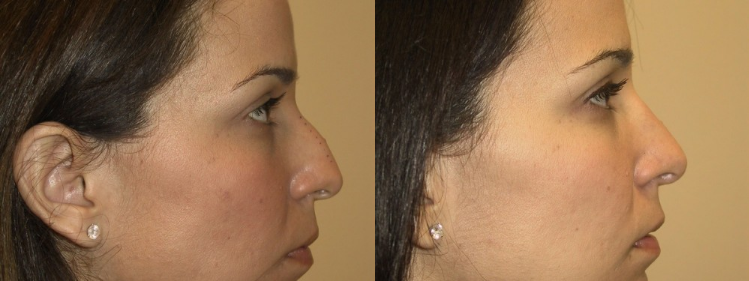 How To Get The Best Rhinoplasty Results Allen Doezie Md Facs
