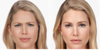 Woman's Botox® Cosmetic Before and After Photos