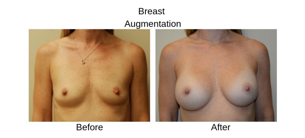 Before and After Breast Augmentatin